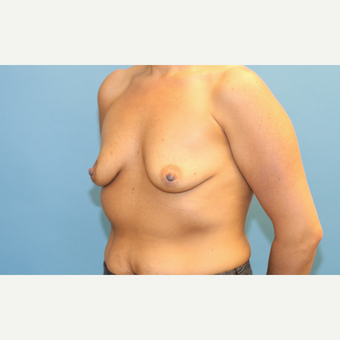 30 year old woman treated with Breast Implants before 3288262