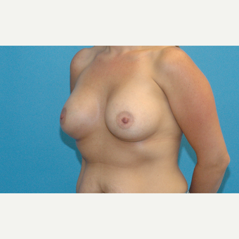 30 year old woman treated with Breast Implants after 3288262