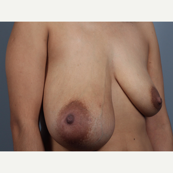 35-44 year old woman treated with Breast Lift and Breast Mass Removal before 3412127