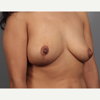 35-44 year old woman treated with Breast Lift and Breast Mass Removal after 3412127