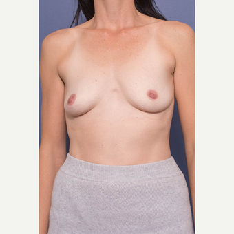 35-44 year old woman treated with Breast Augmentation before 3734950
