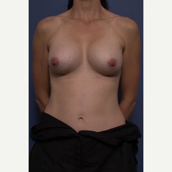 35-44 year old woman treated with Breast Augmentation after 3734950