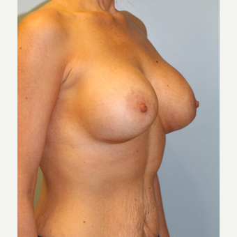 25-34 year old woman treated with Breast Augmentation after 3106674