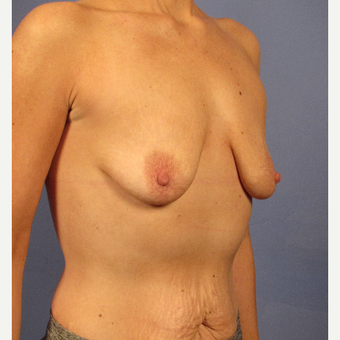 25-34 year old woman treated with Breast Augmentation before 3106674