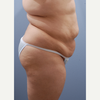 25-34 year old woman treated with Tummy Tuck before 3590391