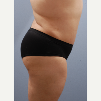 25-34 year old woman treated with Tummy Tuck after 3590391