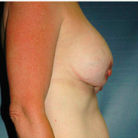 45 year old woman treated with Breast Lift with Implants before 3665983