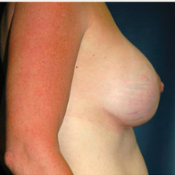 45 year old woman treated with Breast Lift with Implants after 3665983