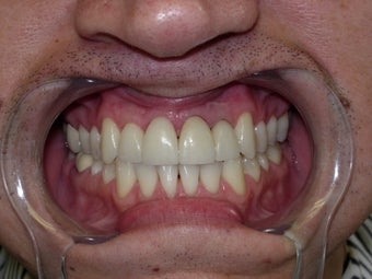 45 year old male patient - cosmetic veneers after 841212
