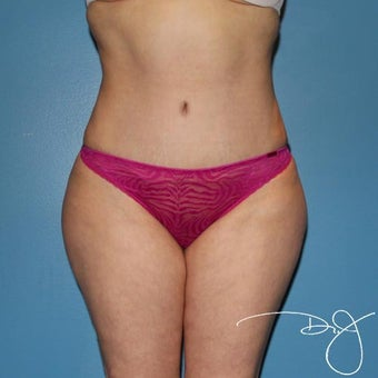 Tummy Tuck after 1342962