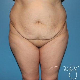 Tummy Tuck before 1342962