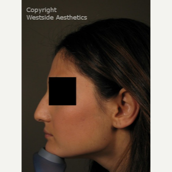 Non Surgical Nose Job to Correct Bump before 3004781