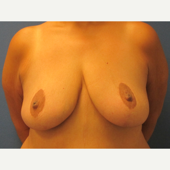 45-54 year old woman treated with Breast Lift before 3696041