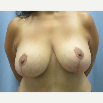 45-54 year old woman treated with Breast Lift after 3696041