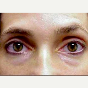 Woman treated with Lower Eyelid Surgery before 1574534