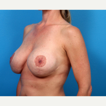 35-44 year old woman treated with Breast Implant Revision before 3366701