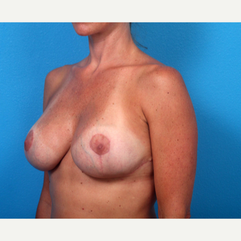 35-44 year old woman treated with Breast Implant Revision after 3366701