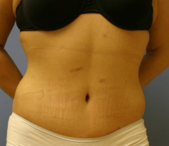 Tummy Tuck after 203123