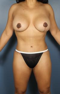 Breast Asymmetry, Breast lift with implants, Mommy Makeover, Tummy Tuck after 1394214