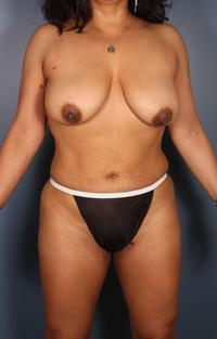 Breast Asymmetry, Breast lift with implants, Mommy Makeover, Tummy Tuck before 1394214