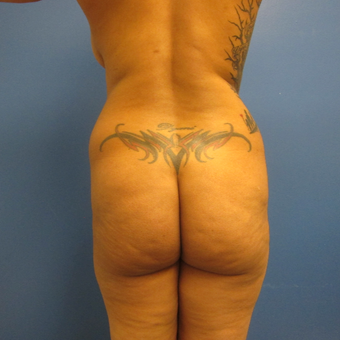 35-44 year old woman treated with Brazilian Butt Lift before 3724854