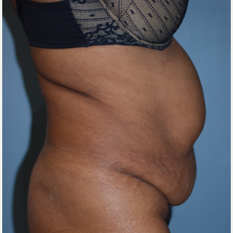 45-54 year old woman treated with Tummy Tuck before 3609793