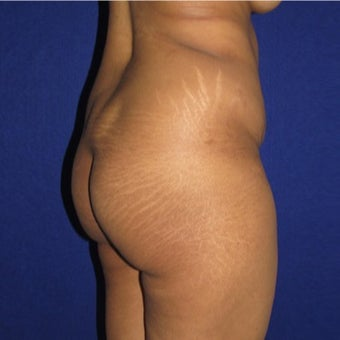 25-34 year old woman treated with Brazilian Butt Lift 1795825