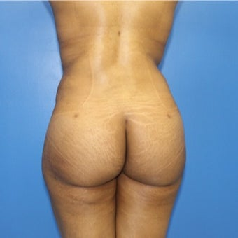 25-34 year old woman treated with Brazilian Butt Lift liposculpture full body(abdomen, waist, love, handles, flanks, bra line) and brazilian