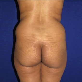 25-34 year old woman treated with Brazilian Butt Lift before 1795825