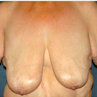 58 year old woman treated with Breast Lift before 3666004