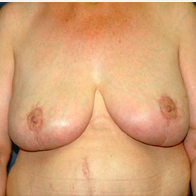 58 year old woman treated with Breast Lift after 3666004