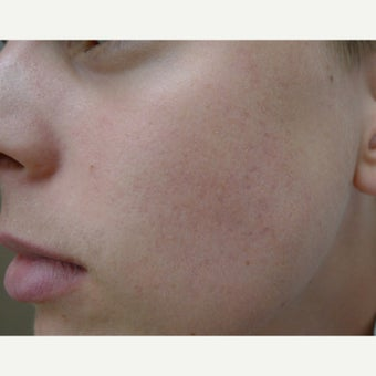 Acne Free RF with eMatrix after 1856300