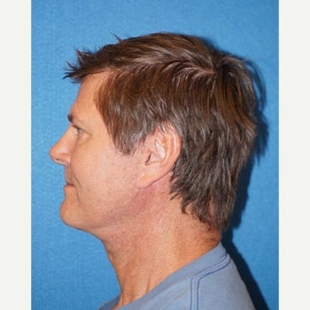 60 year old man treated with Facelift