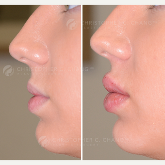 25-34 year old woman treated with Lip Augmentation - same day results before 3626871