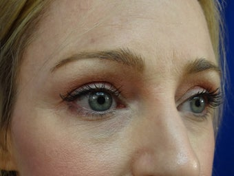 Lower eyelid hyaluronic acid (Restylane) after 908788