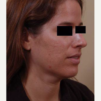 25-34 year old woman treated with Acne Scars Treatment before 3749315