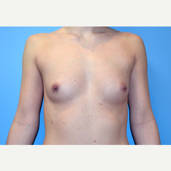 18-24 year old woman treated with Breast Implants before 3439915