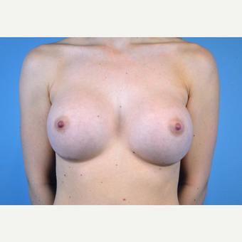 18-24 year old woman treated with Breast Implants after 3439915