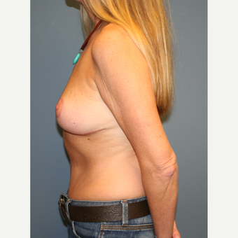 45-54 year old woman treated with Breast Lift after 3454637