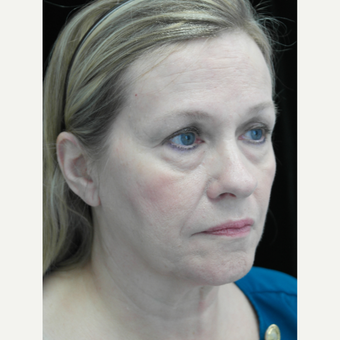 45-54 year old woman treated with Facelift before 3200549