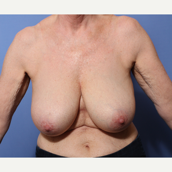 55-64 year old woman treated with Breast Reduction before 3505998