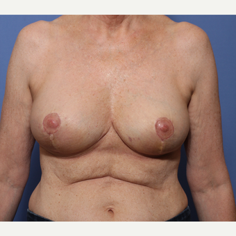 55-64 year old woman treated with Breast Reduction after 3505998