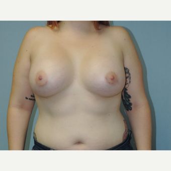 25-34 year old woman treated with Breast Implants after 3454840