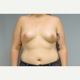 25-34 year old woman treated with Breast Implants before 3454840