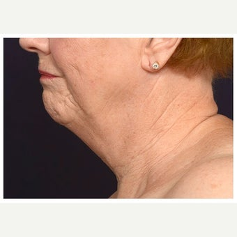 65-74 year old woman treated with Lower Face Lift before 2633277