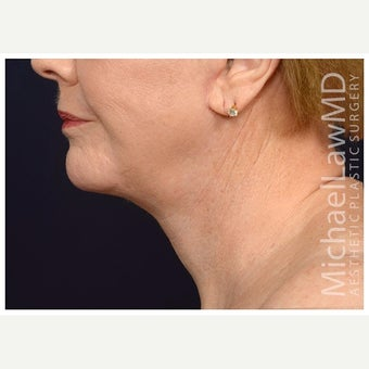 65-74 year old woman treated with Lower Face Lift after 2633277