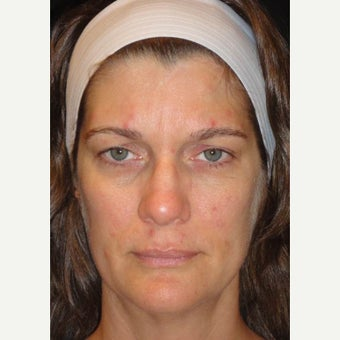 35-44 year old woman treated with Voluma 1626299