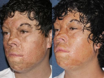 Before & After Laser Resurfacing 806234