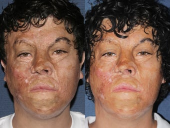 Before & After Laser Resurfacing before 806234