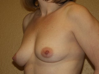 Breast Implants 683118